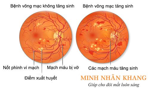 Bệnh võng mạc mắt: Biến chứng nguy hiểm do bệnh tiểu đường
